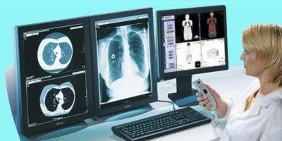 Tele-radiologia